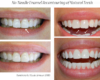 Enameloplasty Tooth Reshaping, Chipped Tooth Repair - Newtown PA Dentist Nicole Armour DMD