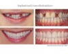 Whitening, Implants and Porcelain Crowns and Veneers - Newtown PA Dentist Nicole Armour DMD