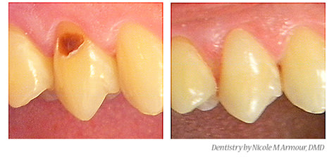 Restorative dentistry - Expert dental care - fillings, crowns, implants