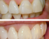 Armour Dentistry - Instant orthodontics of two front teeth with two crowns.