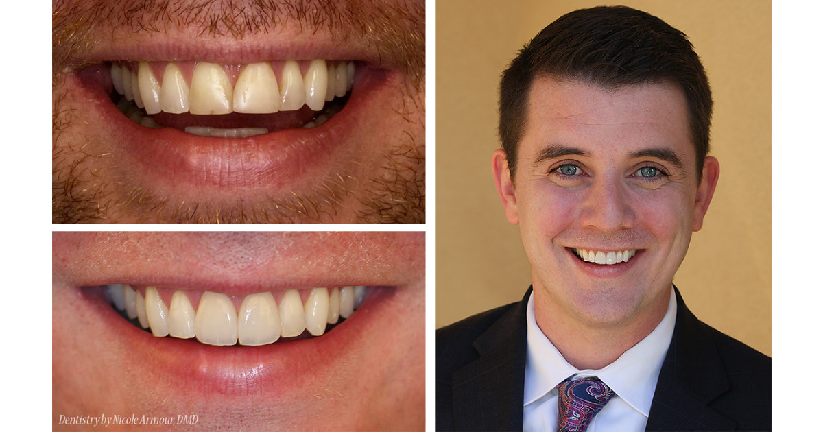 Conservative Makeovers - Armour Dentistry of Newtown