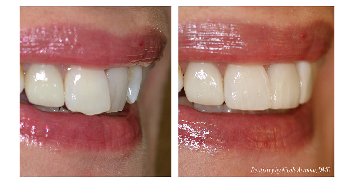 A Sneak Peak of our Newest Cosmetic Bonding System - Armour Dentistry of Newtown