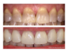 Veneers for Tetracycline stained teeth - Newtown Dentist Nicole M Armour, DMD