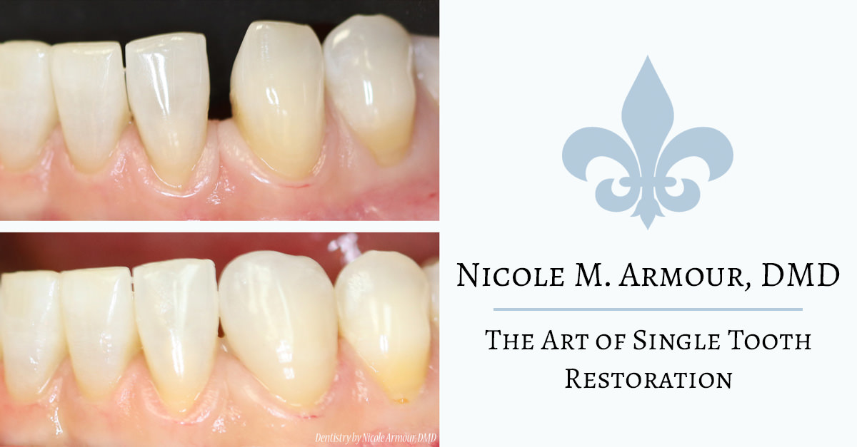 The Art of the Single Tooth Correction - Armour Dentistry of Newtown