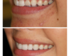 Before and After Porcelain Veneers - Newtown Dentist Nicole M Armour, DMD