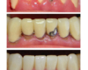 Control of Periodontal disease and new metal-free crowns - Newtown Dentist Nicole M Armour, DMD