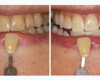 Before and After Zoom! Whitening - Newtown Dentist Nicole M Armour, DMD