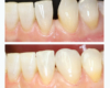 Before and After Single Porcelain Veneer - Newtown Dentist Nicole M Armour, DMD