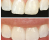 Midline correction with veneers