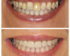 Whitening, Porcelain Crowns, Bridge, Smile Makeover - Newtown PA Dentist Nicole Armour DMD