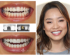 Implant and veneer composite - Smile makeovers by Dr. Armour