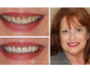 Cosmetic dental veneers by Dr. Armour in Newtown, PA