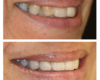 Smile Makeover Crooked Teeth Nicole Armour DMD