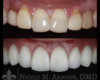 Implant Veneer Crown Nicole Armour DMD