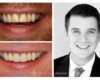 Conservative smile makeovers - Zoom! whitening, crowns, bonding restoration